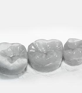 Вкладки на зуб изображение