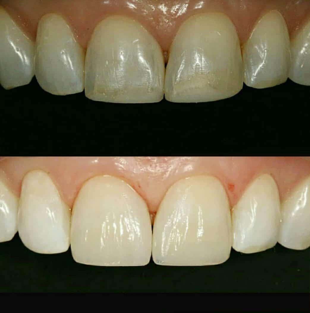 фото наращивание зубов