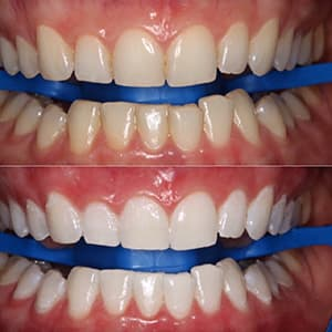 Отбеливание зубов zoom-4 фото