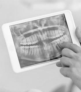 Рентген зубов фото