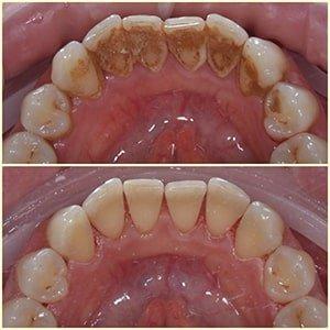 Профессионалная чистка зубов фото
