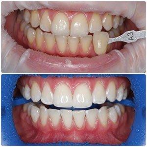 Отбеливание зубов-4 фото до и после