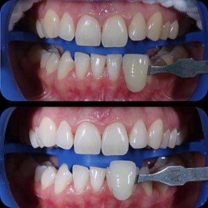 Отбеливание зубов-3 фото до и после