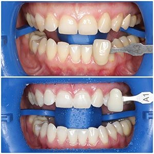 Отбеливание зубов-2 фото до и после