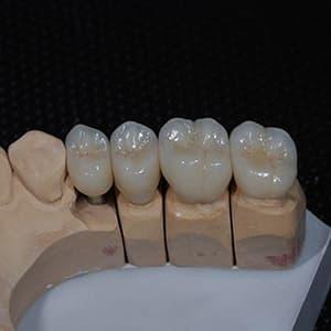 Зубные коронки на зубы и на имплантах фото