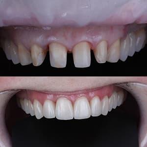 Зубные коронки фото до и после
