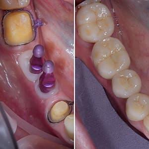Качественная имплантация зубов фото
