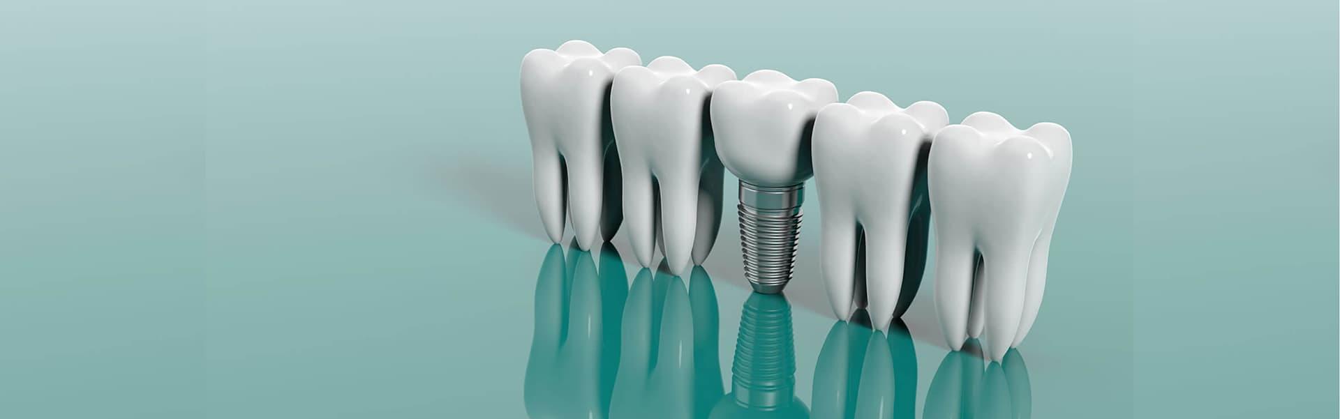 Имплантация зубов. Преимущества  и  недостатки фото