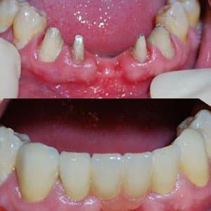 мост на зубы фото до и после