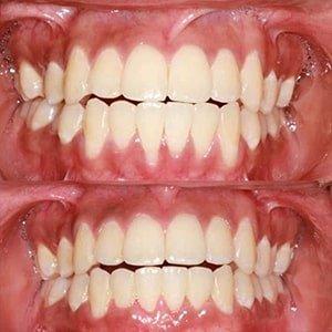 Лечение пародонта в стоматологии фото