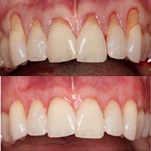 лечение пародонта фото до и после