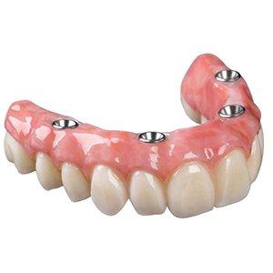 вставной зубной протез фото