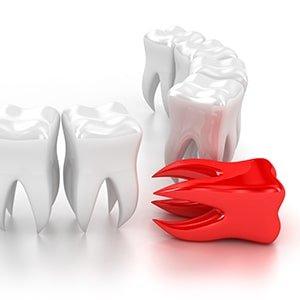 Удаление зуба фото