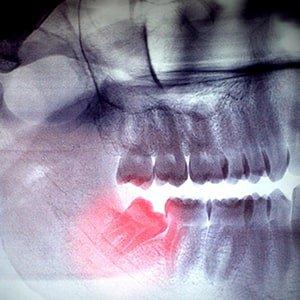 Удаление зуба мудрости фото