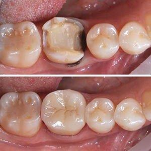 зубные вкладки фото