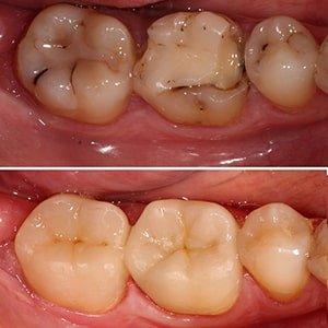вкладки на зуб фото