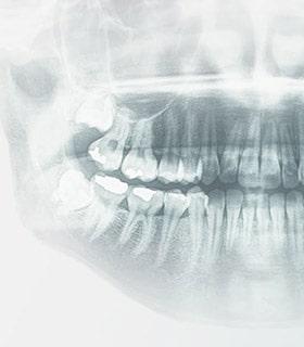 Ренген зуба изображение