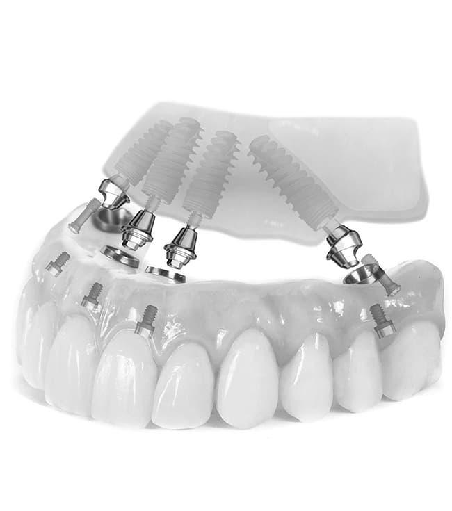 съемный зубной протез на имплантах фото