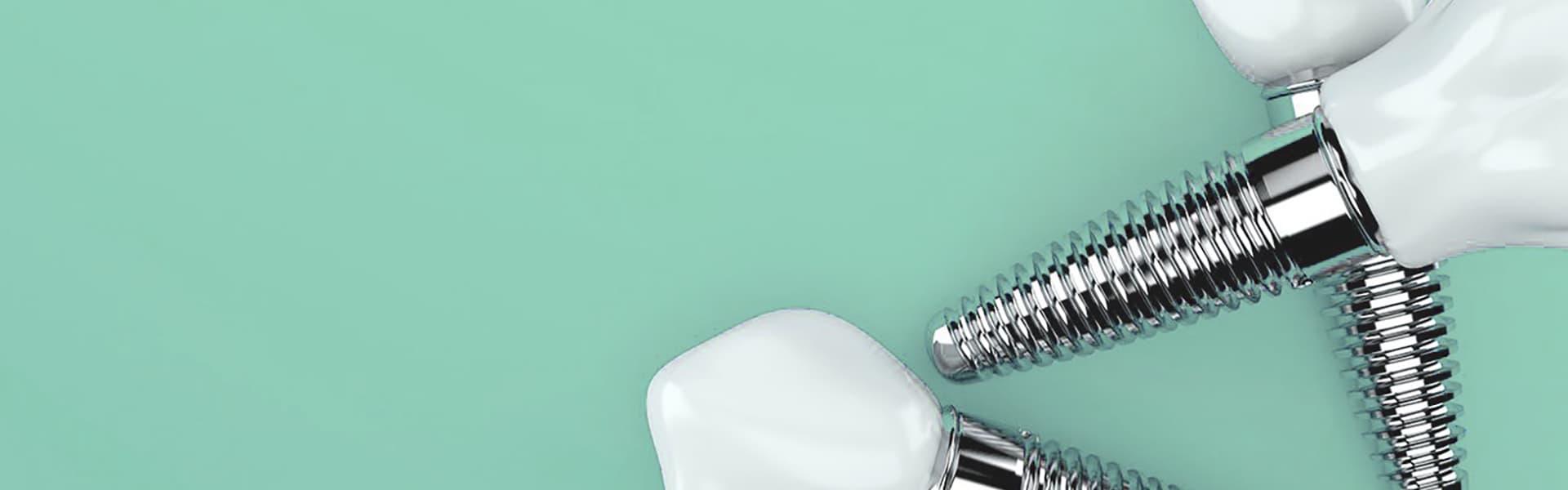 Виды зубных имплантов фото