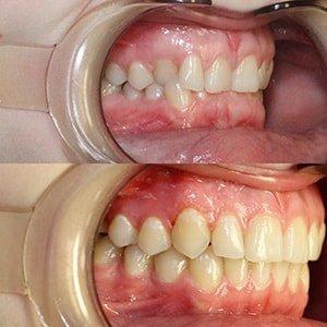 Исправление прикуса брекетами до и после фото