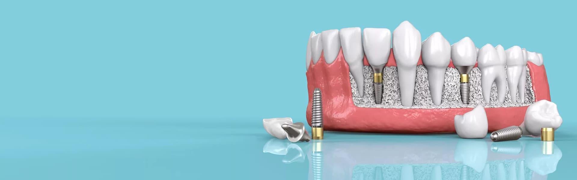 Имплантация зубов без костной пластики фото
