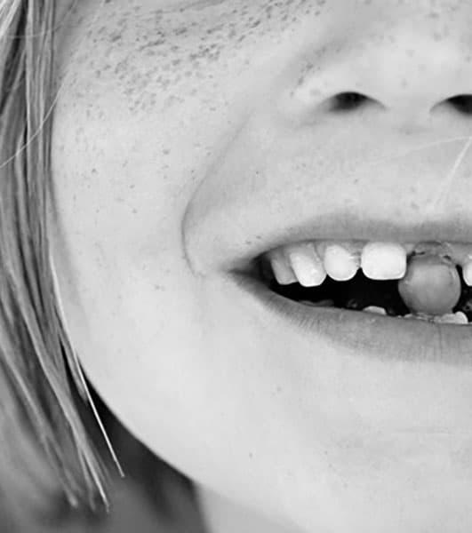 Лечение травмы зуба у ребенка