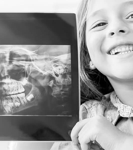 рентген зубов у детей фото
