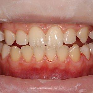 Результат проведения детской гигиенической чистки зубов фото